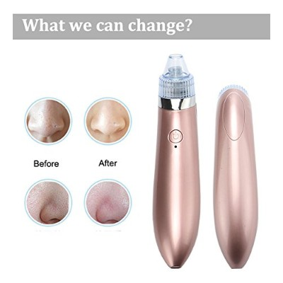 1 PC Beauty Instrument Spot Cleaner Blackheads Electric Artifacts Acne Home Pores Clean Exfoliating...