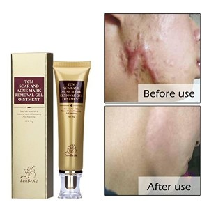 (傷跡 クリーム) Amareu Acne Scar Removal Cream Skin Repair Face Cream For Burns Cuts Operation Stretch...
